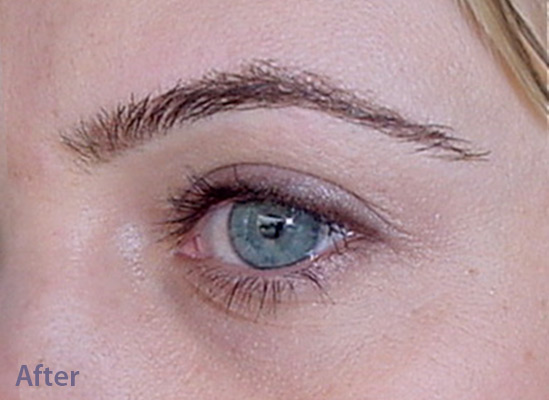 Eyebrows-After-resized-1