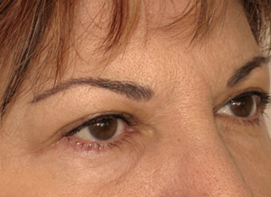 Eyebrows-After-resized-2