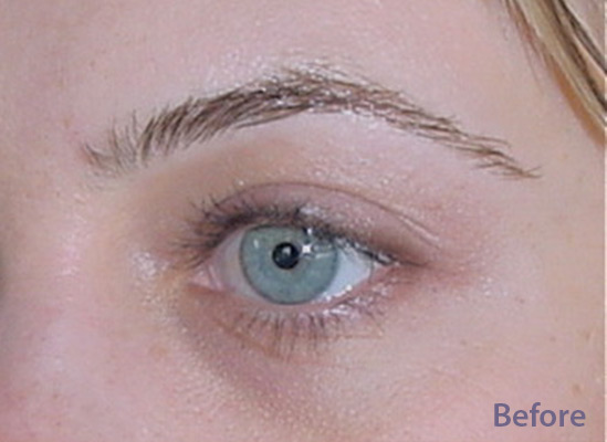 Eyebrows-Before-resized-1