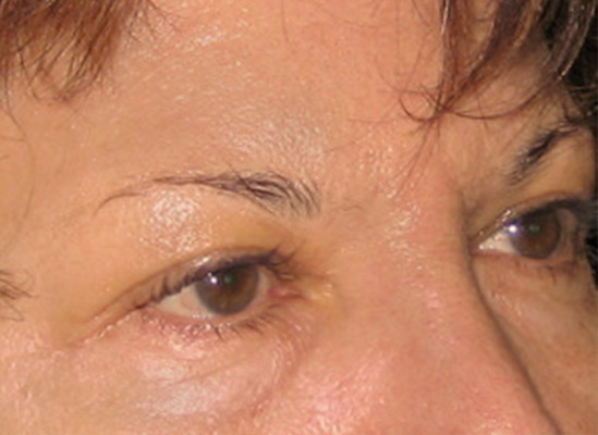 Eyebrows-Before-resized-2